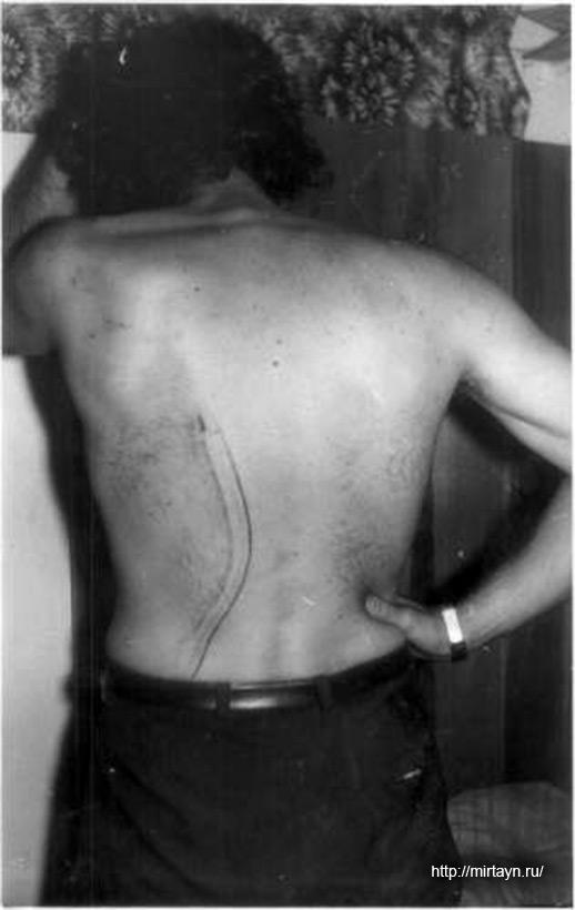 Шрам на спине мужчины продолжается по левой ягодице до промежности