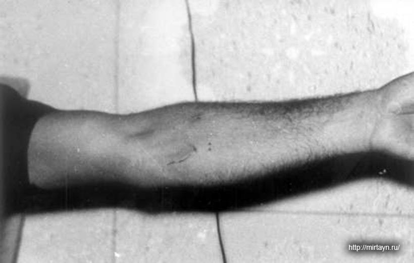 Очень своеобразный шрам на руке