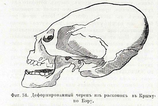 Вытянутые черепа
