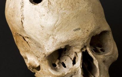 Древняя медицина — сибирские врачи проводили операции на мозге