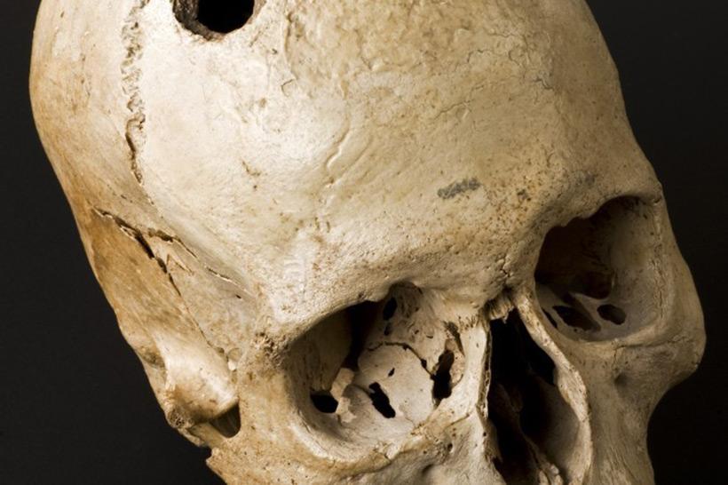 Череп эпохи бронзового века