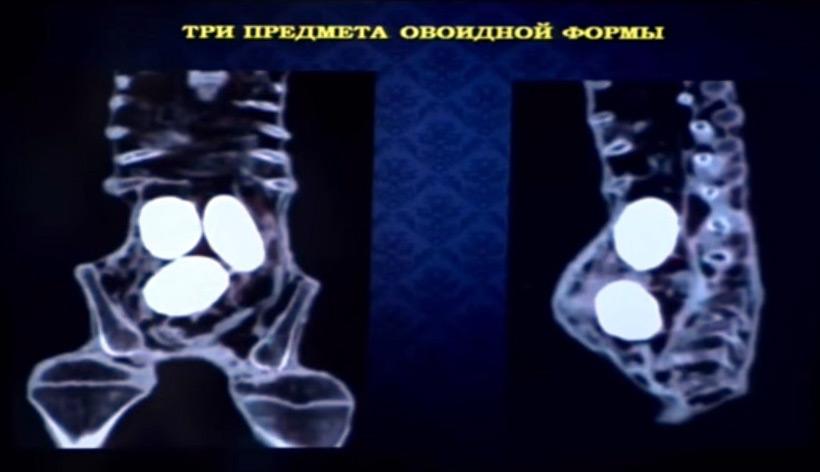 Российские учёные подтвердили изучение тел внеземных существ